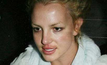 Britney Spears Restylane injections